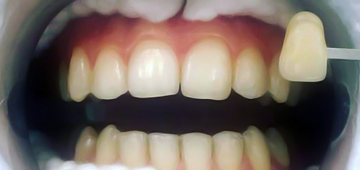 aclinic_before